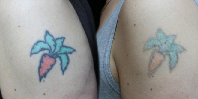 Tattoo entfernen 660x330 - Bundesregierung warnt vor Risiken bei Tattoo-Entfernungen
