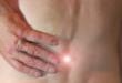 Rueckenschmerzen 110x75 - Volkskrankheit Rückenschmerzen: wenn die Hexe trifft